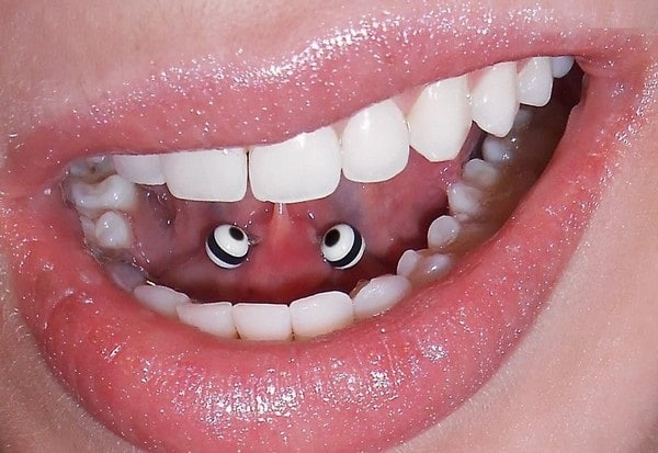 Tongue Web Piercing Pain