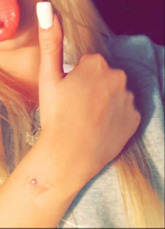 Wrist Dermal Piercing