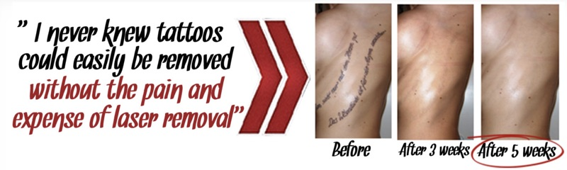 natural methods of tattoo removal