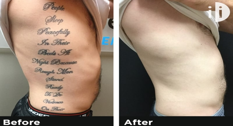 Removal of tattoos before and after the laser